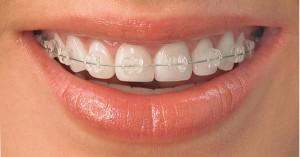 การจัดฟันแบบสีเหมือนฟัน