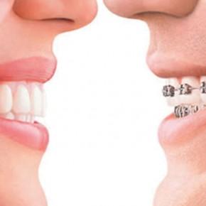 จัดฟัน ในเชียงใหม่มีอะไรบริการอื่นๆบ้าง