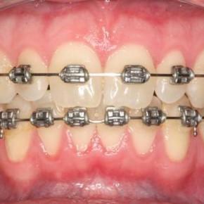 กระบวนการจัดฟัน