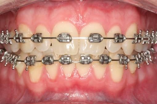 จัดฟันเชียงใหม่
