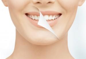 toothwhitening_chiangmai