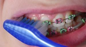 การดูแลเครื่องมือจัดฟัน