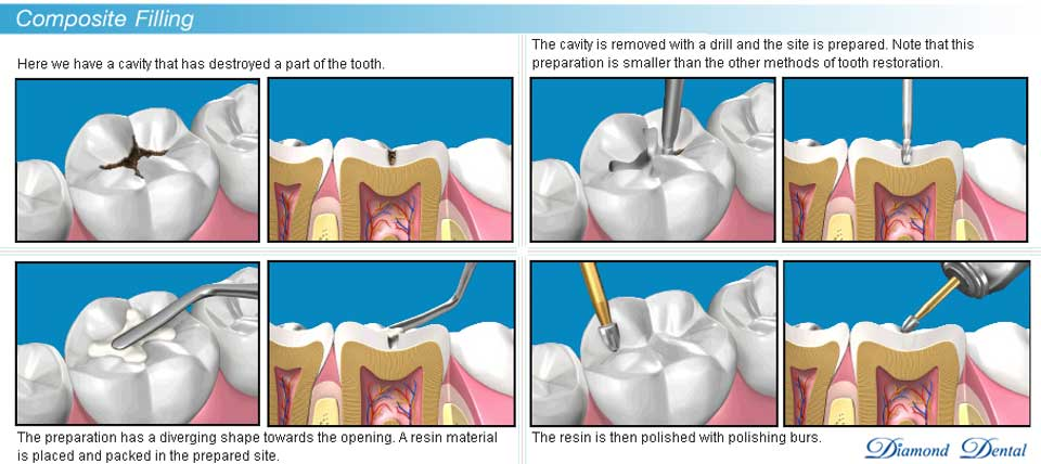 composite-tooth-restorations-bonded-filling