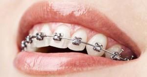 จัดฟันเชียงใหม่ ราคาจัดฟันเชียงใหม่