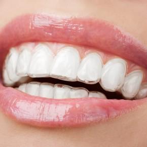 จัดฟันแบบใส เชียงใหม่