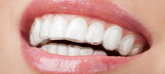 จัดฟันโดนใจวัยทีน