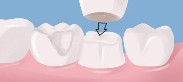 ความแตกต่างระหว่างการครอบฟัน และ การใส่ฟันปลอม