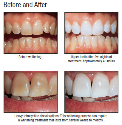 Whiten-Before-After_opalescence