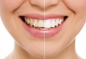 tooth whitening chiang mai