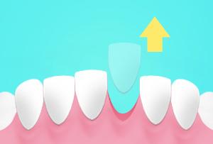 หมอฟันเชียงใหม่ ทำฟันเชียงใหม่