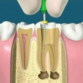 รักษารากฟันทางแก้ของปัญหาเสียวฟัน