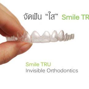 จัดฟันแบบใส มองไม่เห็นเครื่องมือ Smile TRU
