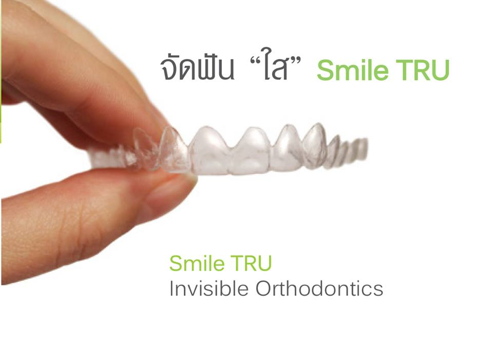 Smile TRU Invisible Orthodontics in Dental Clinic Chiang Mai, Thailand.