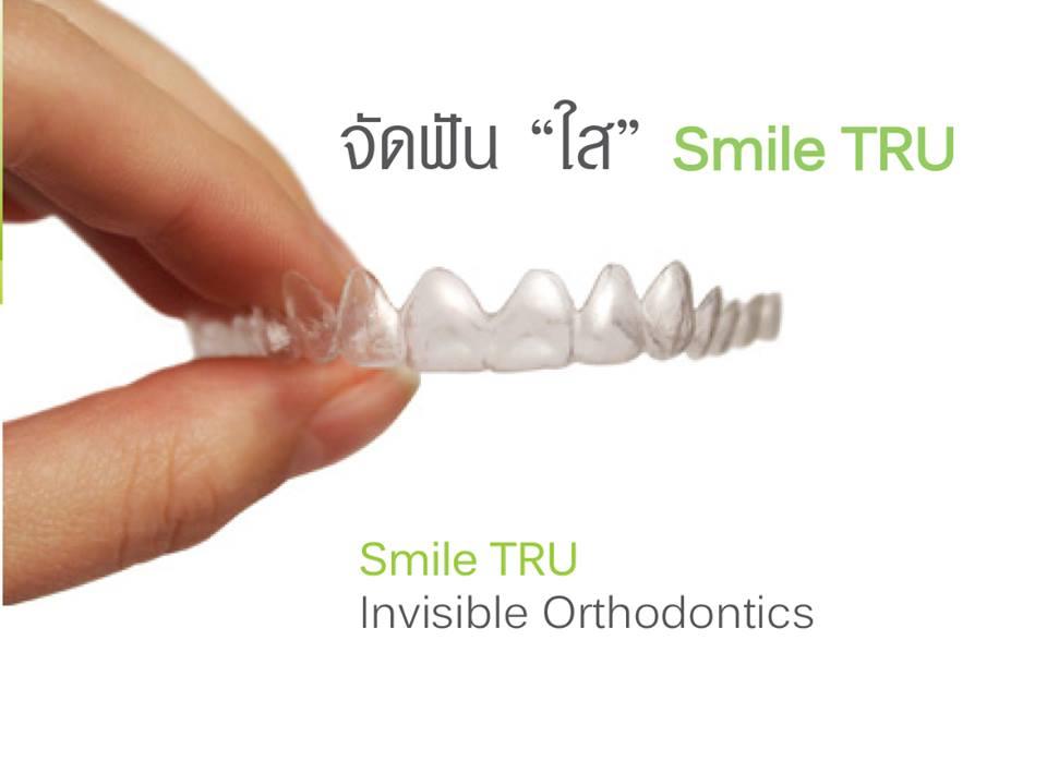จัดฟันแบบใส เชียงใหม่ โดย cm dental clinic, Chiang mai