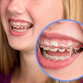 ว่าด้วยเรื่องของ ยางรัดจัดฟัน