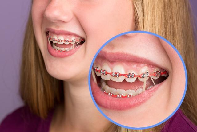 ยางรัด อุปกรณ์ในการจัดฟัน เชียงใหม่