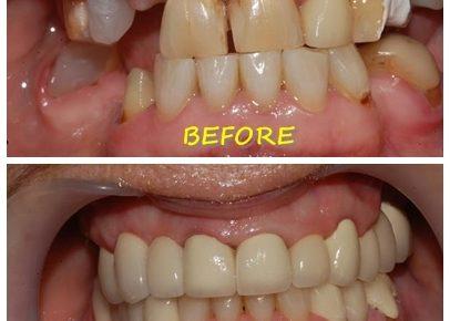 ปกป้องฟันของคุณด้วยการครอบฟัน